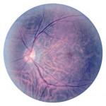 Retinax200